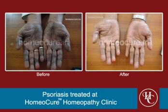 HomeoCure™ Homeopathy Clinic, Pune